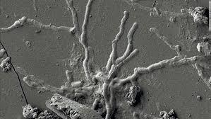 無傷の状態の脳細胞