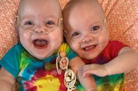 予定日より4か月半早く誕生し「ギネス記録」を持つ双子