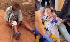 猛毒のヘビに噛まれた9歳少女