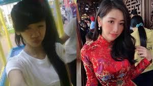 整形したグエン・トゥオン・Vy(Nguyen Tuong Vy)