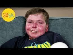 皮膚が剥がれる「表皮水疱症」と闘う
