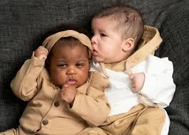 肌の色も髪質も全く異なる4か月の双子姉妹