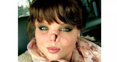 犬に鼻を噛みちぎられた女性
