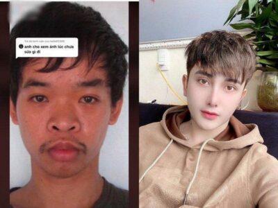 ベトナム在住の26歳の男性ドー・クエンの整形ビフォーアフター