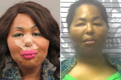 美容整形手術の費用のため銀行強盗を働いたトランスジェンダーの女